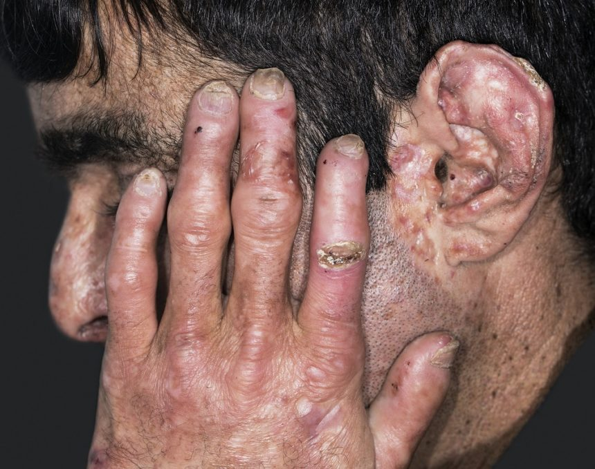 PCT manifests when hepatic UROD activity is <20% of normal.1 As porphyrins accumulate in the liver, they are transported to the skin, leading to phototoxicity as light exposure causes the porphyrins to release photons.1 Subsequently, patients develop blisters on sun-exposed areas of their skin, particularly the hands, face, neck, and forearms. These areas are also prone to blisters and peeling after mild trauma. When the lesions scar, they may resemble systemic scleroderma. In some cases, lesions become painful. Patients may also have abnormal hair growth, skin thickening, and hypopigmentation. PCT is diagnosed when elevated porphyrins are detected in the plasma. Urine and fecal studies can confirm the diagnosis when they show similarly elevated porphyrin levels, with urine typically showing excess uroporphyrin and 7-carboxylate porphyrin and feces showing excess isocoproporphyrin.6 Patients with a PCT diagnosis should be tested for HCV if their status is unknown. Photo Credit: Dr Harout Tanielian/Science Source.