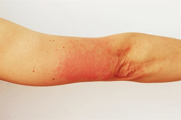 Photodermatitis is rare, occurring in approximately 5% of people who are HIV positive.18,19 HAART and other medications, including nonsteroidal anti-inflammatory drugs and trimethoprim-sulfamethoxazole, can increase the risk for photosensitivity and subsequent photodermatitis. Risk is also increased in individuals with CD4 counts <50 cells/µL.18,19 Photodermatitis manifests on sun-exposed areas of the body, but can extend beyond these areas in patients with advanced disease.19 Presentations can vary significantly and clinical findings may include polymorphic light eruption, actinic prurigo, chronic actinic dermatitis, porphyria cutanea tarda, photosensitive granuloma annulare, and lichenoid photoeruption.18 In rare cases, skin depigmentation mimicking vitiligo may be observed.18 Patients with darker skin, particularly those of African origin, are most commonly affected, even after controlling for CD4 counts and ultraviolet index.19