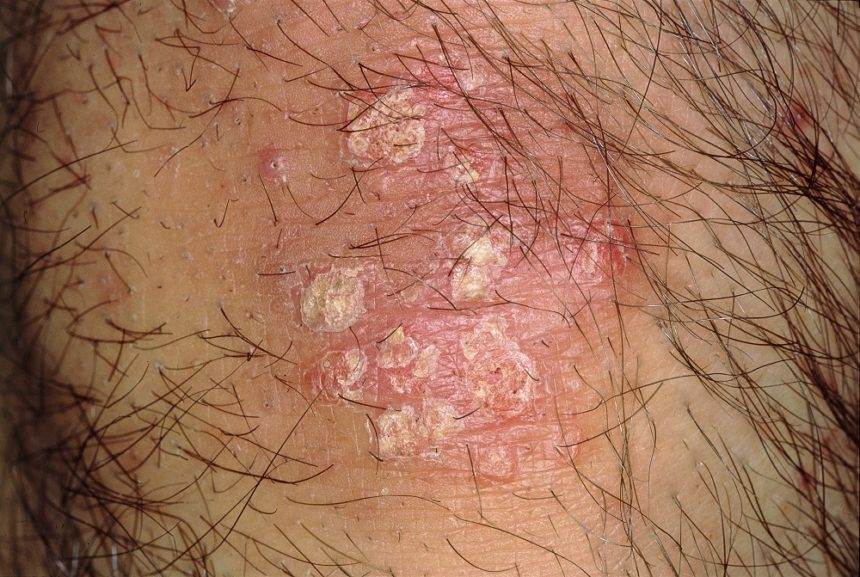 Psoriasis is a chronic, immune-mediated skin disorder, affecting ~2% of the US general population.7 Characteristic findings include well-demarcated symmetrical erythematous patches or plaques with silver scales. Psoriasis appears to be more common in people with certain comorbidities, including HCV. In a single-institution study from Japan, where estimated prevalence is <1%, HCV infection was identified in 7.5% of psoriatic patients (54 of 717).8,9 In ~80% of cases, HCV infection preceded onset of psoriasis, but HCV treatment was also found to cause new lesions or exacerbate existing ones.8 A recently published small study assessed the relationship between HCV and psoriasis by comparing biopsies of patients with psoriatic with (n=7) and without (n=10) HCV.10 The findings suggest HCV increases susceptibility to psoriasis by upregulating inflammatory cytokines, including cathelicidin, TLR9, and interferon γ.10 The association between HCV, HCV treatment, and psoriasis requires elucidation in larger, prospective studies. Photo Credit: Hercules Robinson.
