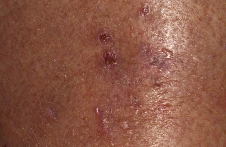 Pruritus is a common dermatological symptom in the chronic HCV setting, reported to affect approximately 15% to 20% of patients.1,13 Pruritus can occur as a part of another skin disorder associated with HCV or be a direct result of HCV's effects on the liver. It can also be associated with HCV treatment, including direct-acting antivirals, although it is less common with these treatments vs older regimens, such as interferon and ribavirin.1 Patients may present with generalized or localized pruritus on normal-appearing skin or have other skin findings, such as excoriations and lichenification, particularly if another skin condition is present. Some patients have even reported feeling like their internal organs are itching.13 Pruritus should be evaluated in all patients with HCV, as it can have a significant effect on quality of life and might indicate worsening liver disease, as the condition is most prevalent in those with advanced liver disease and cirrhosis.13 Photo Credit: Hercules Robinson.