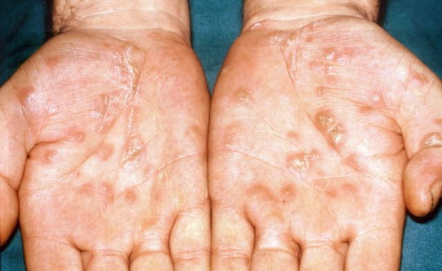 syphilis rash on hands