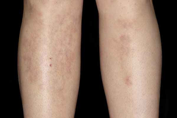Red patches on the legs of a 38-year-old woman caused by TB. Nodular vasculitis is an inflammation of fatty tissues beneath the skin