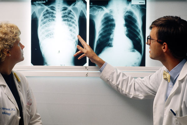 Doctors compare lung x-rays of a patient with TB (left) and a healthy patient (right).