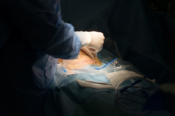 Women should continue taking ART during the labor and delivery period or scheduled cesarean section.3