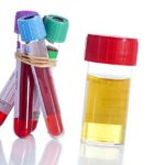 Urine and blood sample