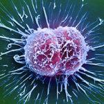 Cervical cancer cells / Science Source