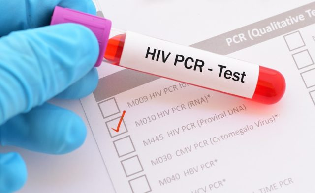 HIV PCR test