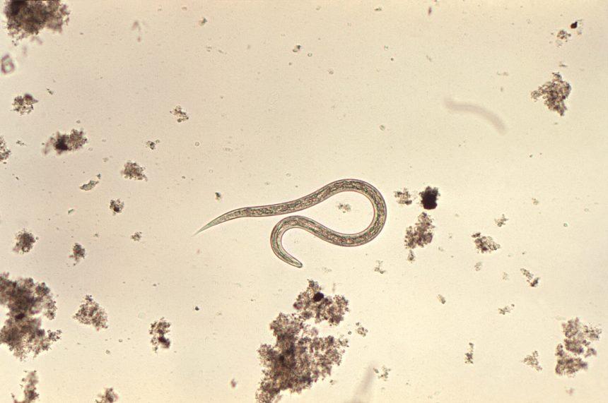 Hookworm larvae, microscopic