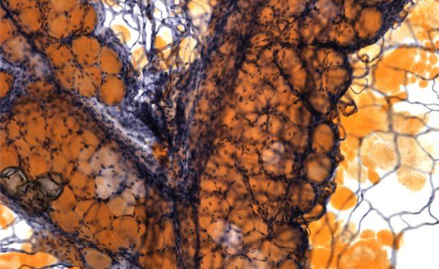 Light micrograph of adipose tissue