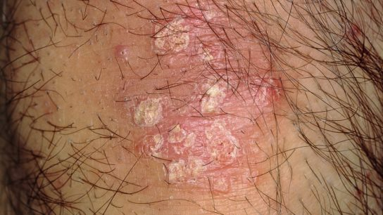 Psoriasis on a man's scalp
