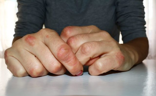 A flare-up of psoriasis on a man's hands