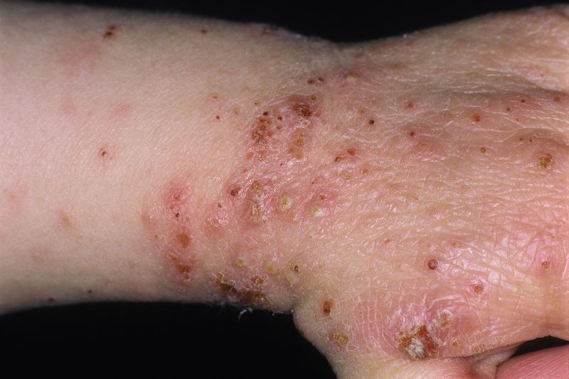 Atopic dermatitis (an allergy-related skin disorder) with secondary infection on a patient's wrist.