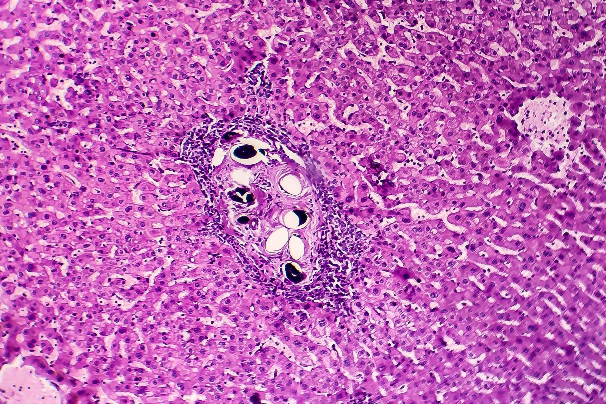 hepatitis c schistosomiasis poszter paraziták