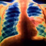 pneumonia xray