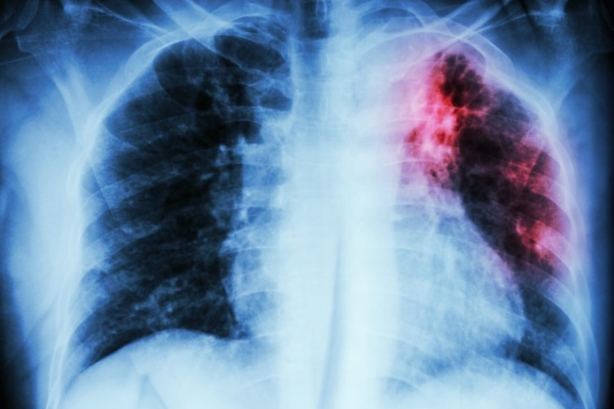 Pulmonary Tuberculosis