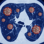 lung with infected with coronavirus