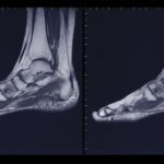 Foot and ankle, MRI.