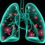 coronavirus infection in lungs, COVID-19